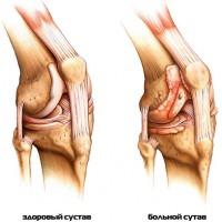 Причины и лечение артрита