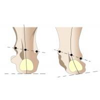 Плоско-вальгусные стопы у ребенка и их лечение